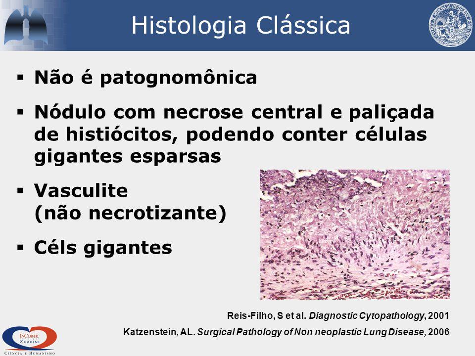 Histologia Clássica  Não é patognomônica  Nódulo com necrose central e paliçada de histiócitos, podendo conter células gigantes esparsas  Vasculite (não necrotizante)  Céls gigantes Katzenstein, AL.