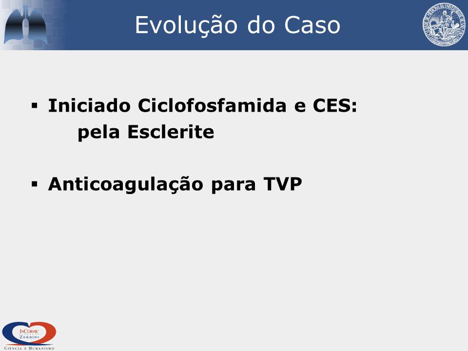  Iniciado Ciclofosfamida e CES: pela Esclerite  Anticoagulação para TVP Evolução do Caso