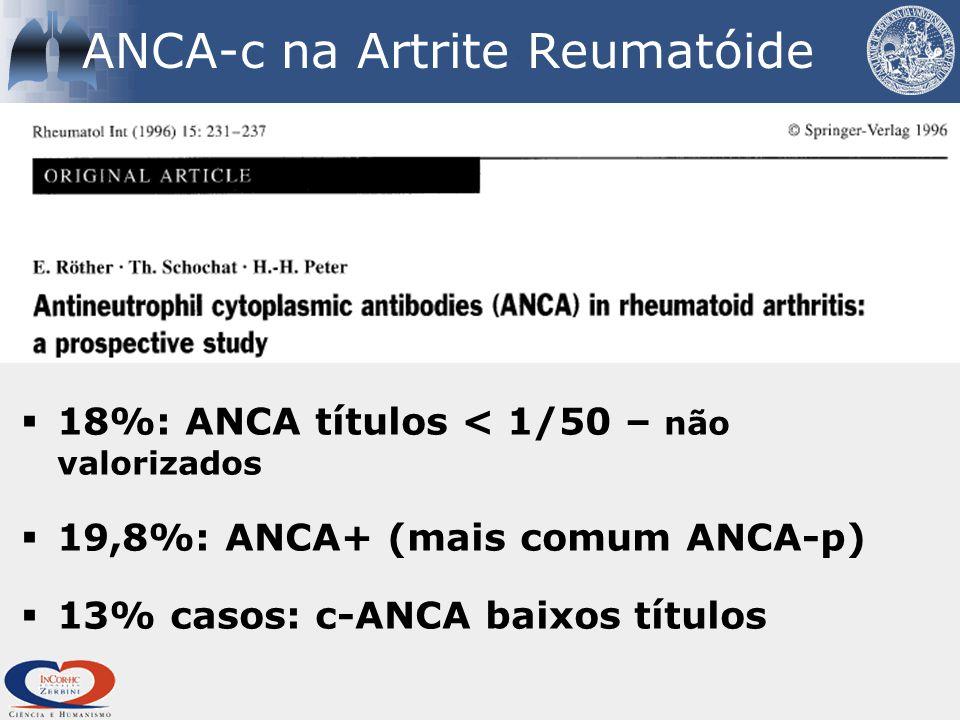 ANCA-c na Artrite Reumatóide  18%: ANCA títulos < 1/50 – não valorizados  19,8%: ANCA+ (mais comum ANCA-p)  13% casos: c-ANCA baixos títulos