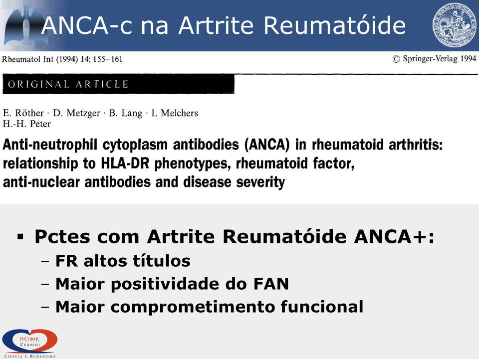  Pctes com Artrite Reumatóide ANCA+: –FR altos títulos –Maior positividade do FAN –Maior comprometimento funcional ANCA-c na Artrite Reumatóide