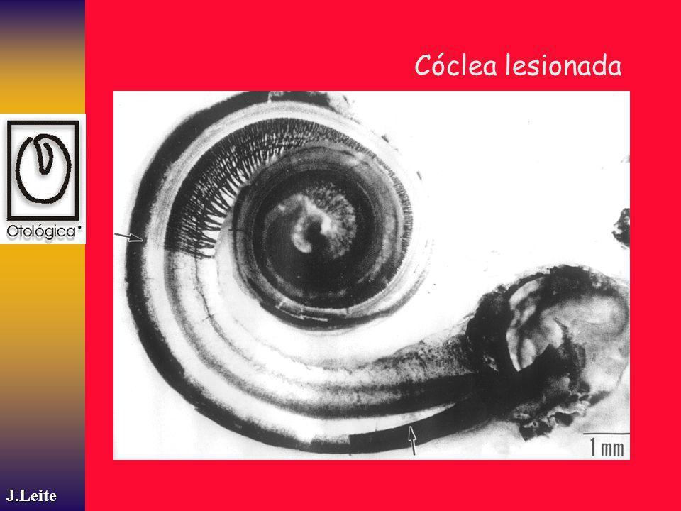 Cóclea lesionada J.Leite