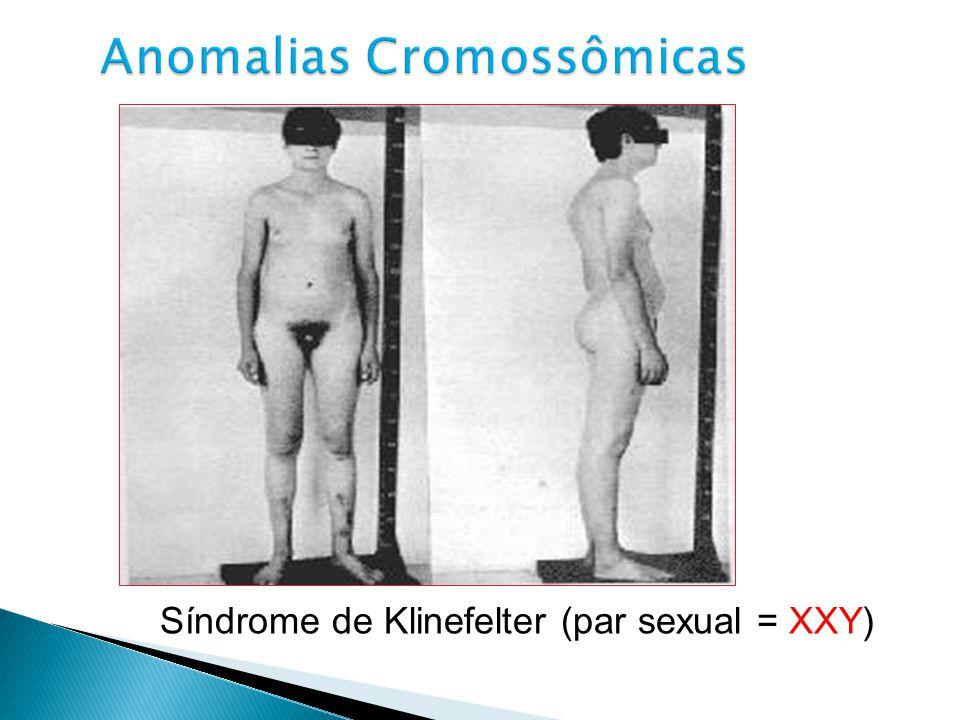 Síndrome de Klinefelter (par sexual = XXY)