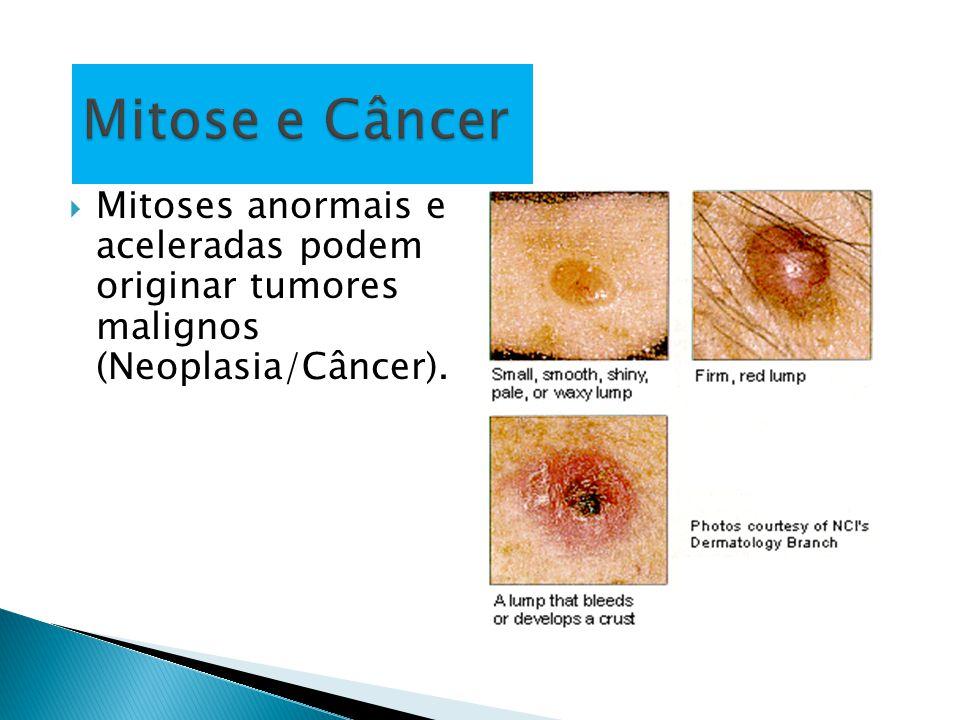  Mitoses anormais e aceleradas podem originar tumores malignos (Neoplasia/Câncer).