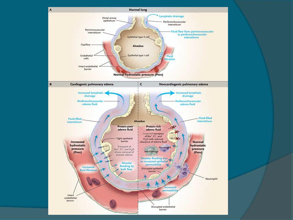 Edema não cardiogênico  Síndrome de angústia respiratória aguda e lesão pulmonar aguda  Altas altitudes  Edema pulmonar neurogênico ( trauma, convulsões, hemorragia intracerebral ou subaracnóidea, cirurgia intracaniana)  Reperfusão após remoção de êmbolo  Reexpansão pulmonar em pctes com pneumotórax