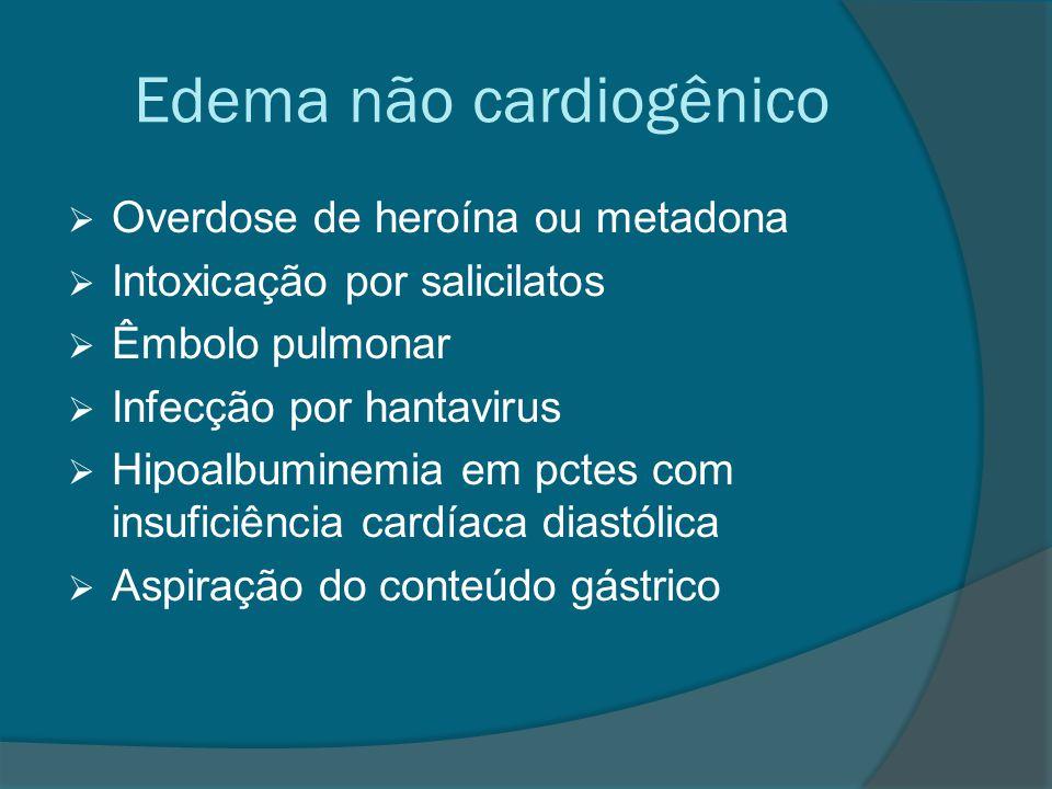 Edema não cardiogênico  Overdose de heroína ou metadona  Intoxicação por salicilatos  Êmbolo pulmonar  Infecção por hantavirus  Hipoalbuminemia e