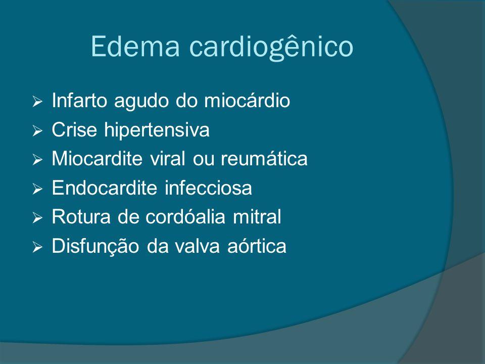 Edema cardiogênico  Infarto agudo do miocárdio  Crise hipertensiva  Miocardite viral ou reumática  Endocardite infecciosa  Rotura de cordóalia mi