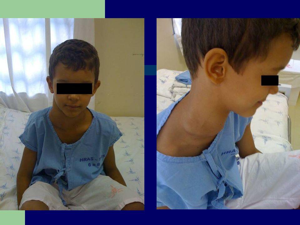 EXAME FÍSICO Ectoscopia: BEG, normocorado, hidratado, anictérico, acianótico, eupneico, eutrófico, afebril.