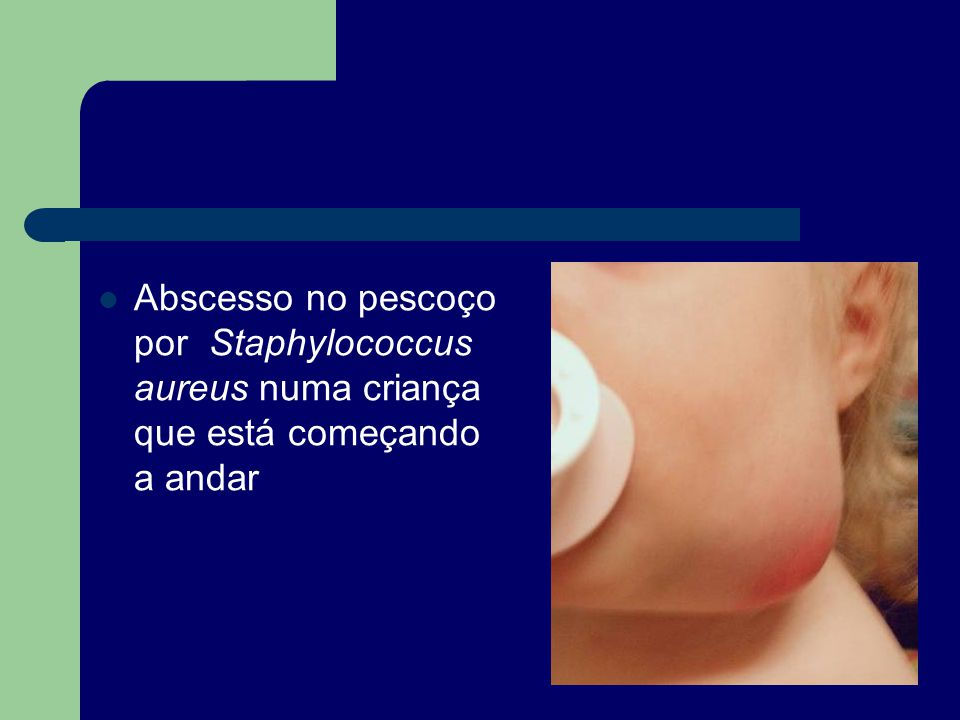 Organisms Clinical Clues Diagnostic Test(s) Staphylococcus aureus Streptococcus pyogenes Acute unilateral adenitis; ages 1 – 4 years; 2-6-cm nodes, frequent associated cellulitis; 25-33% become fluctuant Throat culture for Streptococcus pyogenes; needle aspirate of node for Gram stain and culture For Staphylococcus aureus, suppuration is rapid; without therapy, 85% of nodes suppurate Group B streptococcus Ages 2 – 6 weeks; cellulitis-adenitis syndrome; facial or submandibular cellulitis; ipsilateral otitis media Blood culture and aspirate of node or soft tissue for Gram stain and culture CSF evaluation if cellulitis-adenitis syndrome Anaerobic bacteria Older children; caries; periapical or periodontal disease presentNeedle aspiration of node for Gram stain and culture; blood culture Bartonella henselae Most common cause of chronic unilateral adenopathy; contact with kittens; oculoglandular syndrome; inoculation papule present Serologic analysis; culture of tissue with granulomas with stellate abscesses on biopsy NontuberculousMycobacterium Age 1 – 5 years; no systemic symptoms; no exposure to TB; unilateral submandibular node: normal chest radiograph and ESR; PPD usually < 15 mm Characteristic granulomatous reaction; culture of excised node Mycobacteriumtuberculosis Age > 5 years; systemic symptoms with history of exposure to TB; bilateral lower cervical node involvement; elevated ESR Positive PPD and chest radiograph; culture of gastric aspirate Toxoplasma gondii Fever, fatigue, myalgia, sore throat; discrete < 3 cm localized anterior cervical, suboccipital, or supraclavicular nodes; ± mediastinal adenopathy Serologic analysis