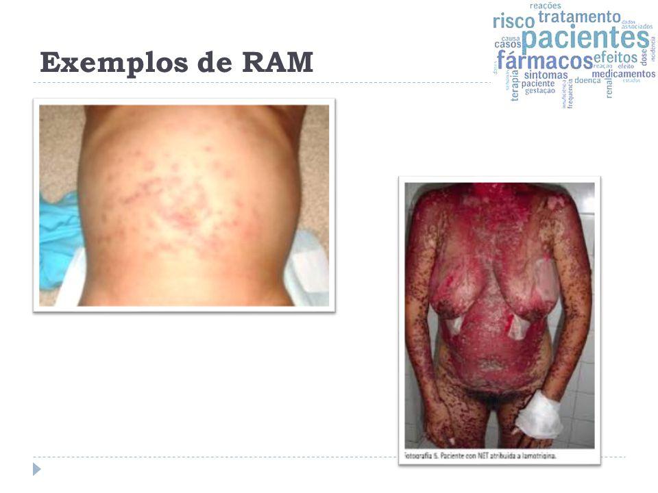 Exemplos de RAM