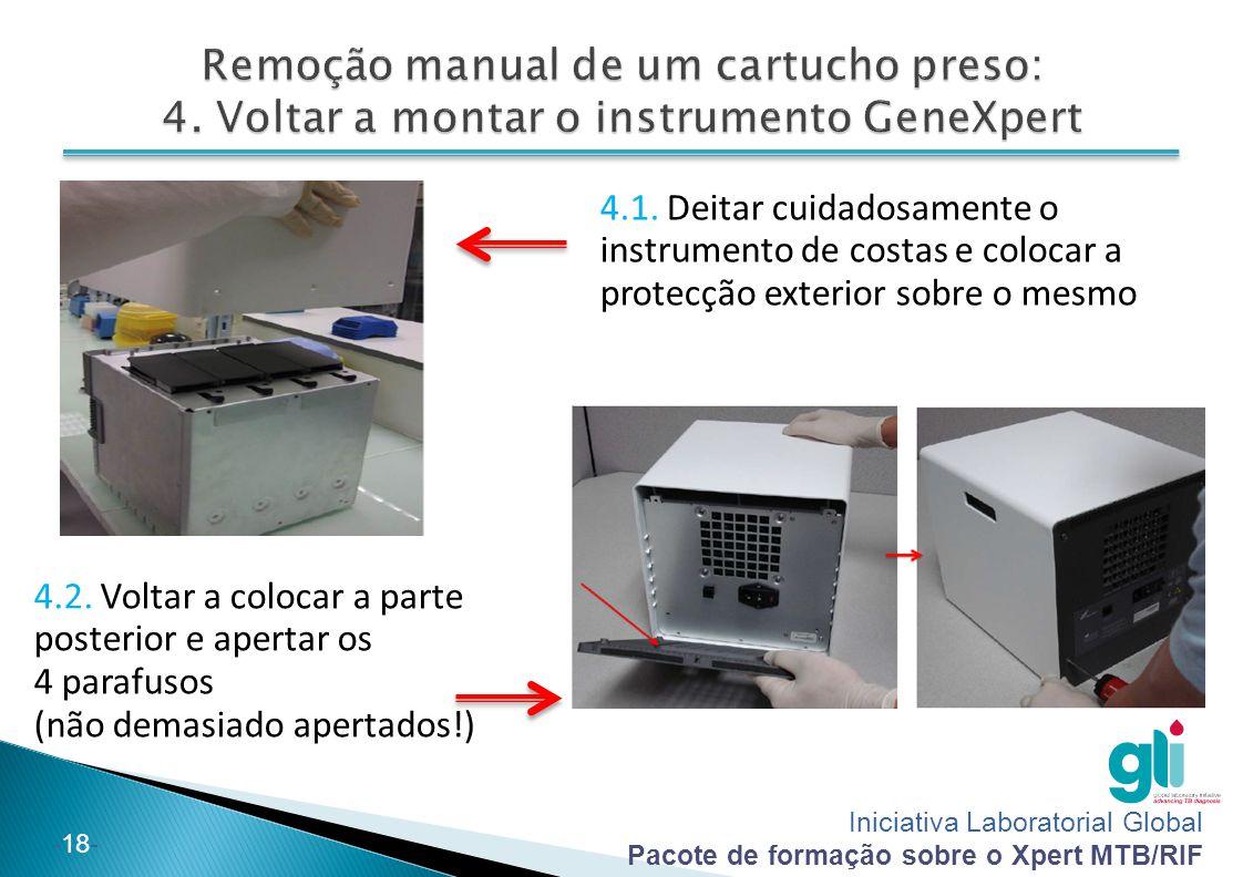 Iniciativa Laboratorial Global Pacote de formação sobre o Xpert MTB/RIF -18- 4.1. Deitar cuidadosamente o instrumento de costas e colocar a protecção
