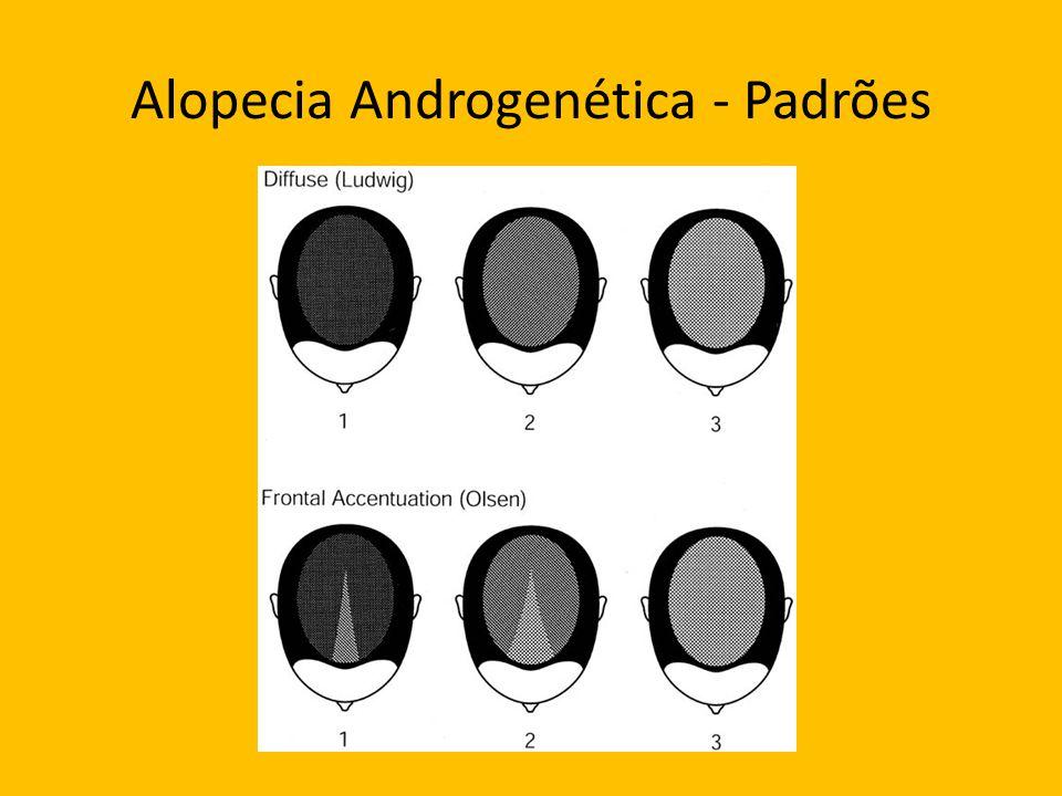 Alopecia Androgenética - Padrões