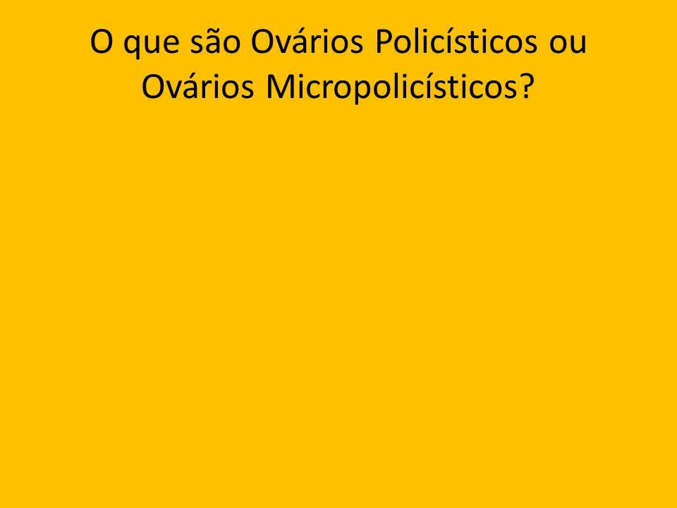 O que são Ovários Policísticos ou Ovários Micropolicísticos?