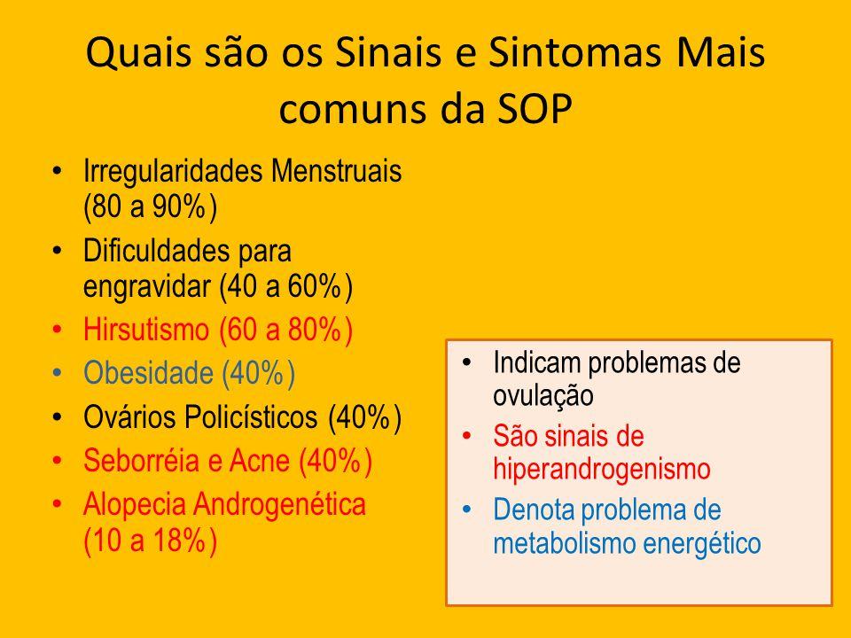 Quais são os Sinais e Sintomas Mais comuns da SOP Irregularidades Menstruais (80 a 90%) Dificuldades para engravidar (40 a 60%) Hirsutismo (60 a 80%)