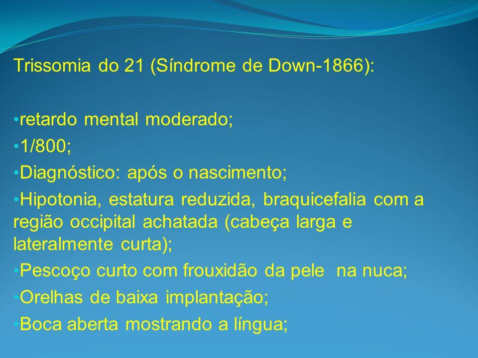 Trissomia do 21 (Síndrome de Down-1866): retardo mental moderado; 1/800; Diagnóstico: após o nascimento; Hipotonia, estatura reduzida, braquicefalia com a região occipital achatada (cabeça larga e lateralmente curta); Pescoço curto com frouxidão da pele na nuca; Orelhas de baixa implantação; Boca aberta mostrando a língua;