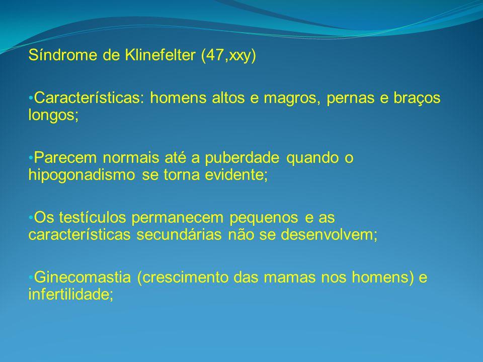 Síndrome de Klinefelter (47,xxy) Características: homens altos e magros, pernas e braços longos; Parecem normais até a puberdade quando o hipogonadismo se torna evidente; Os testículos permanecem pequenos e as características secundárias não se desenvolvem; Ginecomastia (crescimento das mamas nos homens) e infertilidade;
