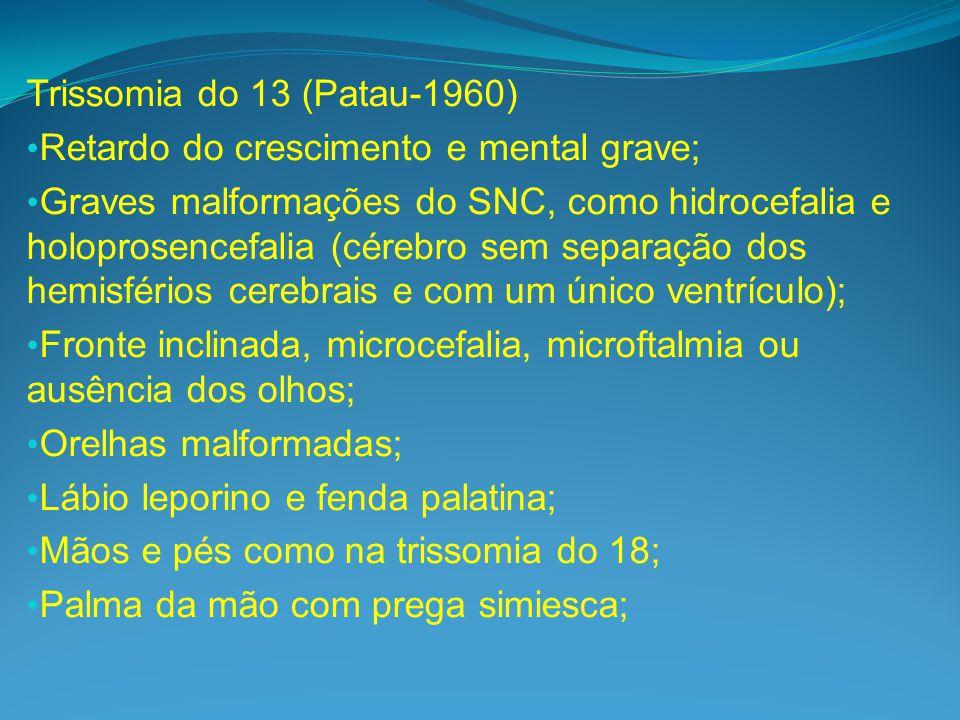 Trissomia do 13 (Patau-1960) Retardo do crescimento e mental grave; Graves malformações do SNC, como hidrocefalia e holoprosencefalia (cérebro sem separação dos hemisférios cerebrais e com um único ventrículo); Fronte inclinada, microcefalia, microftalmia ou ausência dos olhos; Orelhas malformadas; Lábio leporino e fenda palatina; Mãos e pés como na trissomia do 18; Palma da mão com prega simiesca;