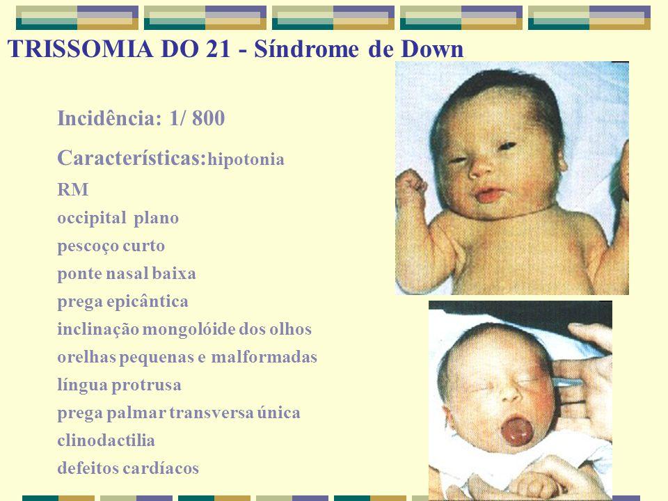 Incidência: 1/ 800 Características: hipotonia RM occipital plano pescoço curto ponte nasal baixa prega epicântica inclinação mongolóide dos olhos orel