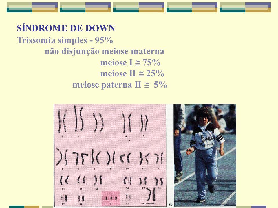 SÍNDROME DE DOWN Trissomia simples - 95% não disjunção meiose materna meiose I  75% meiose II  25% meiose paterna II  5%
