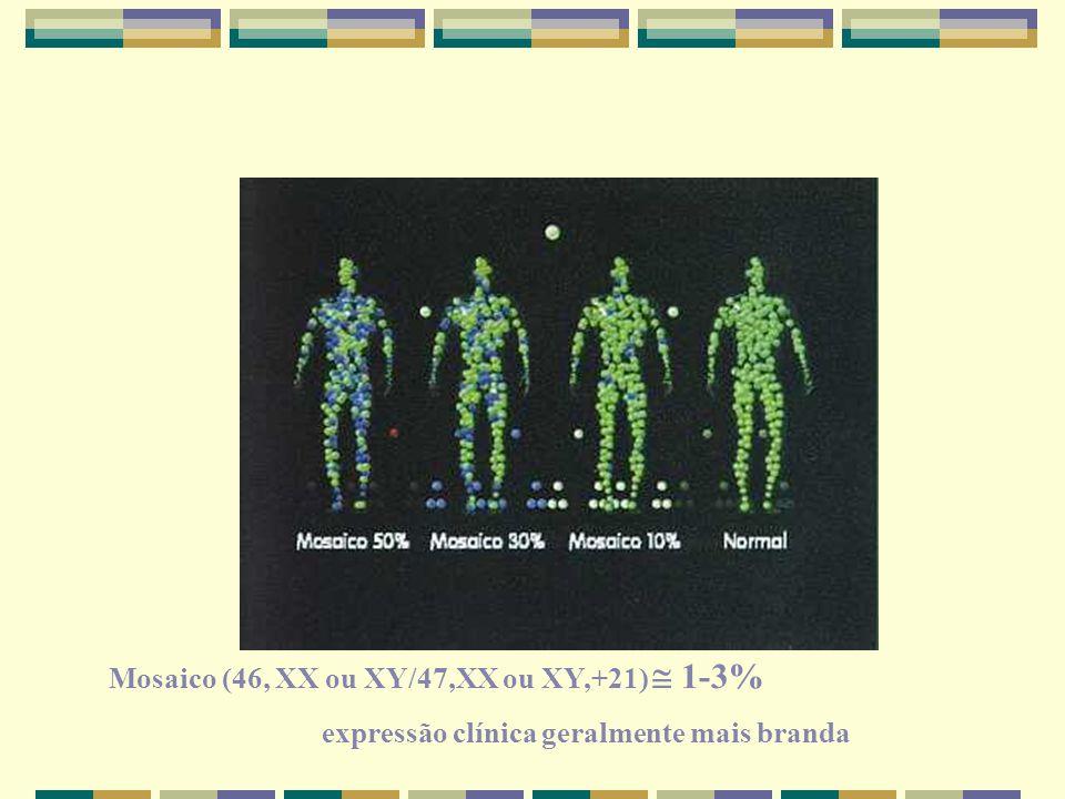 Mosaico (46, XX ou XY/47,XX ou XY,+21)  1-3% expressão clínica geralmente mais branda