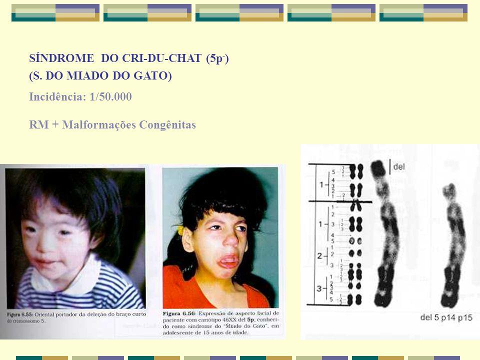 SÍNDROME DO CRI-DU-CHAT (5p - ) (S. DO MIADO DO GATO) Incidência: 1/50.000 RM + Malformações Congênitas
