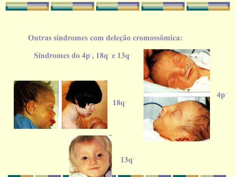 Outras síndromes com deleção cromossômica: Síndromes do 4p -, 18q - e 13q - 4p - 18q - 13q -