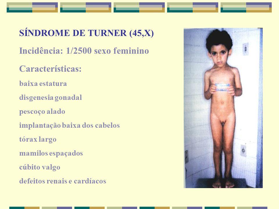 SÍNDROME DE TURNER (45,X) Incidência: 1/2500 sexo feminino Características: baixa estatura disgenesia gonadal pescoço alado implantação baixa dos cabe