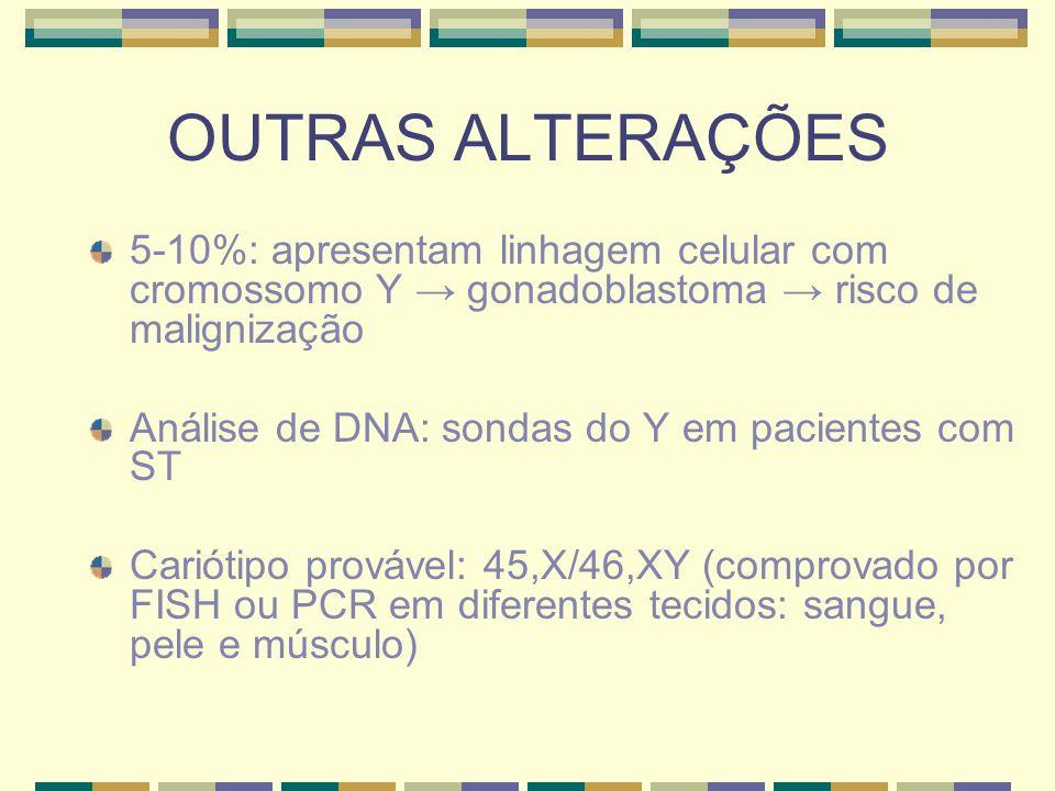 OUTRAS ALTERAÇÕES 5-10%: apresentam linhagem celular com cromossomo Y → gonadoblastoma → risco de malignização Análise de DNA: sondas do Y em paciente