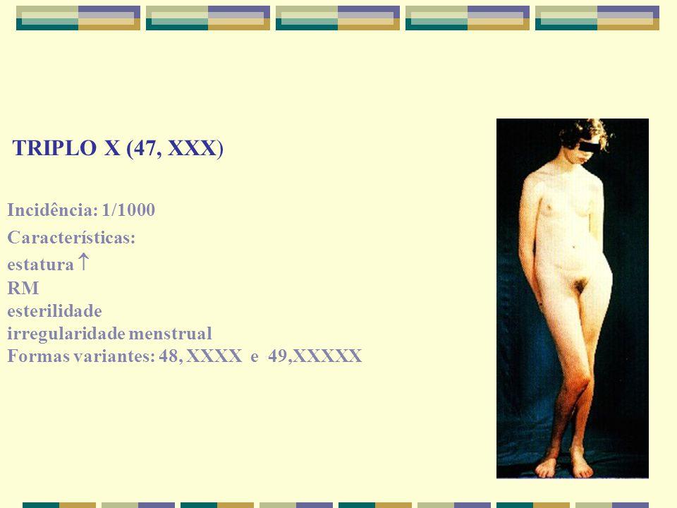 TRIPLO X (47, XXX) Incidência: 1/1000 Características: estatura  RM esterilidade irregularidade menstrual Formas variantes: 48, XXXX e 49,XXXXX