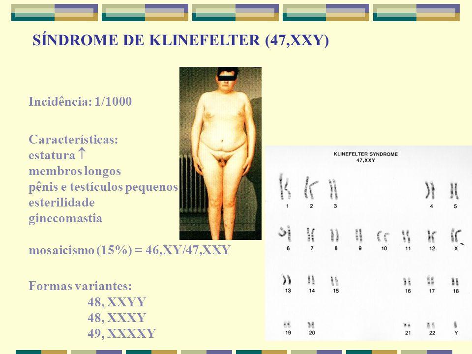Incidência: 1/1000 Características: estatura  membros longos pênis e testículos pequenos esterilidade ginecomastia mosaicismo (15%) = 46,XY/47,XXY Fo