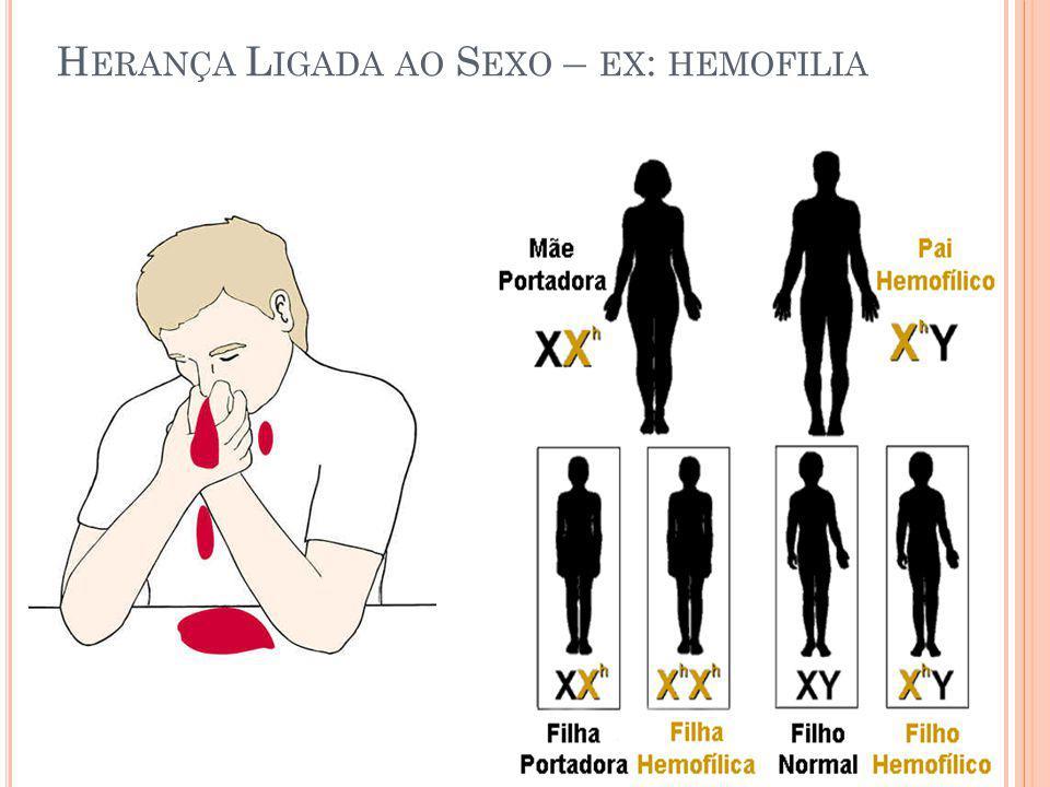 H ERANÇA L IGADA AO S EXO – EX : HEMOFILIA