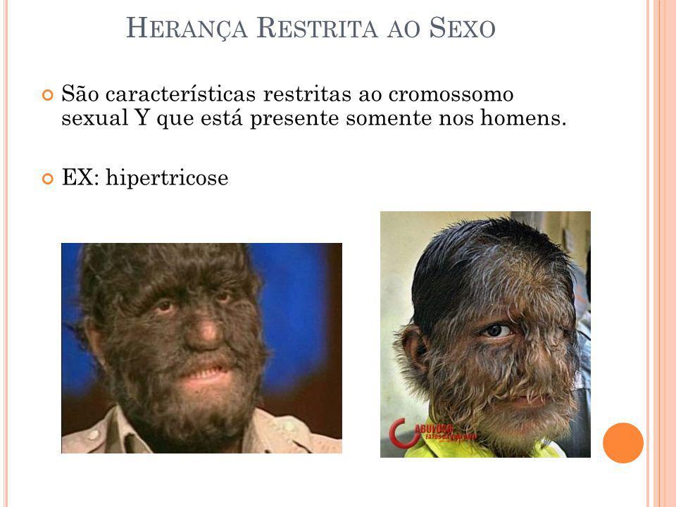 H ERANÇA R ESTRITA AO S EXO São características restritas ao cromossomo sexual Y que está presente somente nos homens. EX: hipertricose
