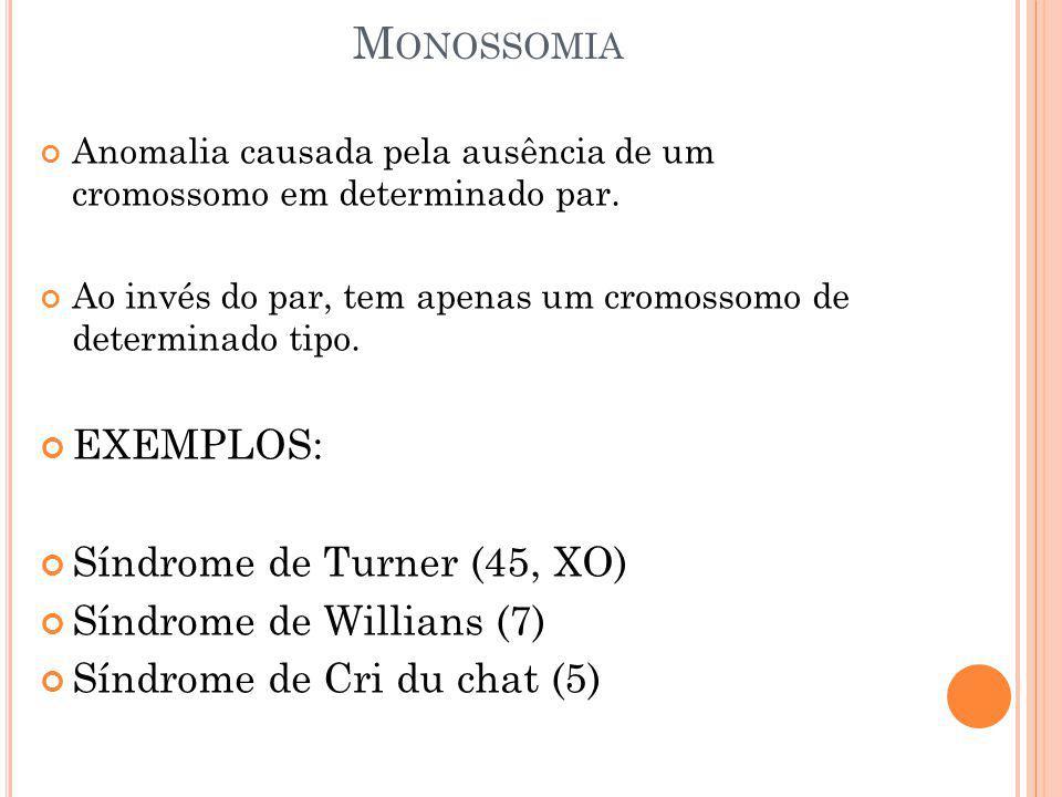 M ONOSSOMIA Anomalia causada pela ausência de um cromossomo em determinado par. Ao invés do par, tem apenas um cromossomo de determinado tipo. EXEMPLO