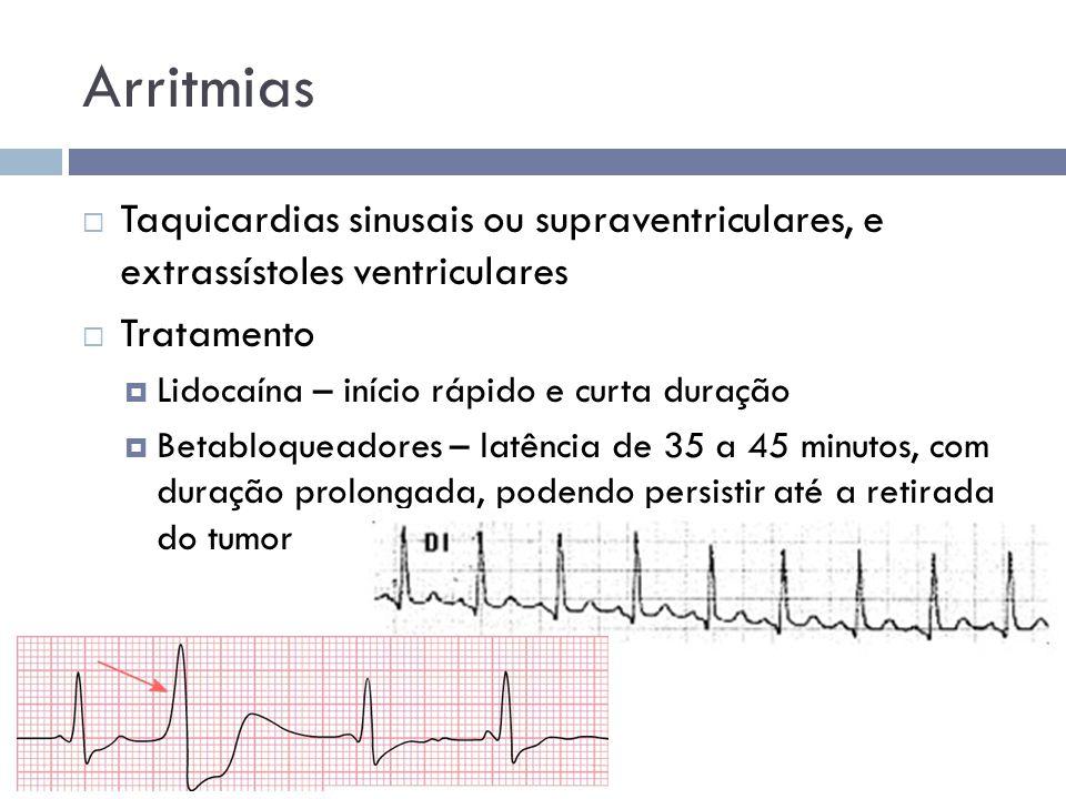 Arritmias  Taquicardias sinusais ou supraventriculares, e extrassístoles ventriculares  Tratamento  Lidocaína – início rápido e curta duração  Bet