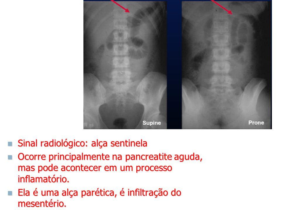 Sinal radiológico: alça sentinela Sinal radiológico: alça sentinela Ocorre principalmente na pancreatite aguda, mas pode acontecer em um processo infl