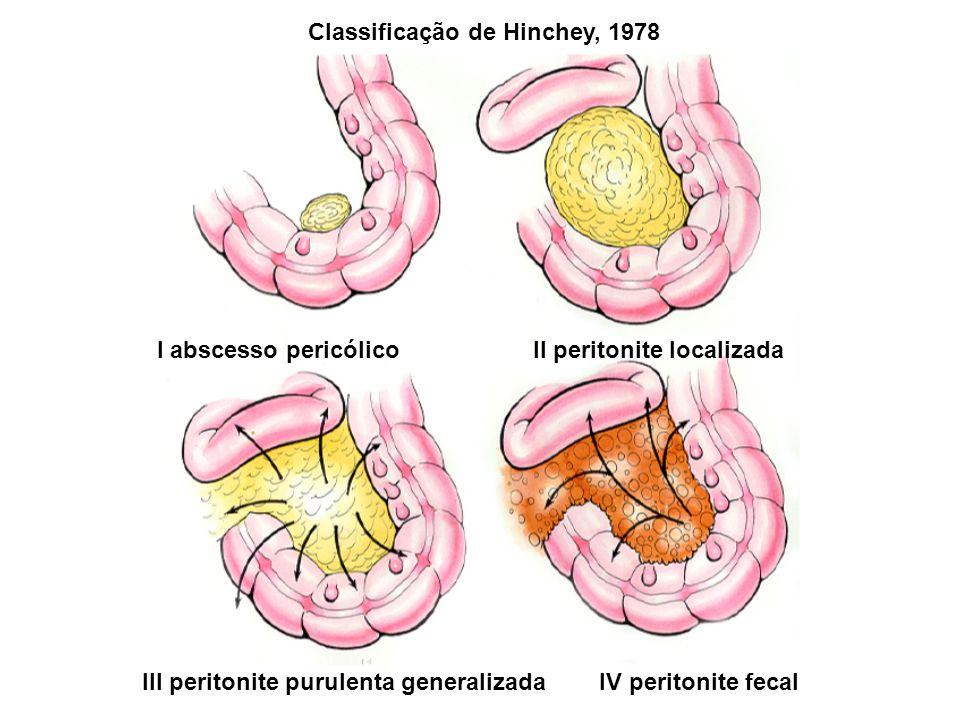 I abscesso pericólico II peritonite localizada III peritonite purulenta generalizada IV peritonite fecal Classificação de Hinchey, 1978