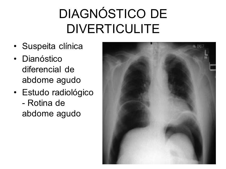DIAGNÓSTICO DE DIVERTICULITE Suspeita clínica Dianóstico diferencial de abdome agudo Estudo radiológico - Rotina de abdome agudo