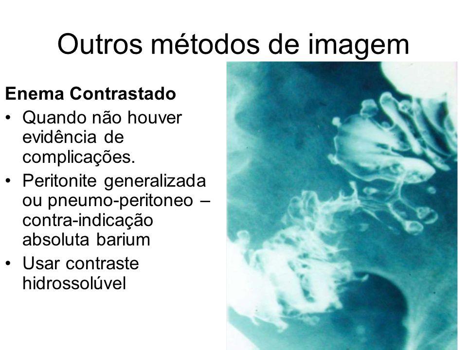 Outros métodos de imagem Enema Contrastado Quando não houver evidência de complicações.