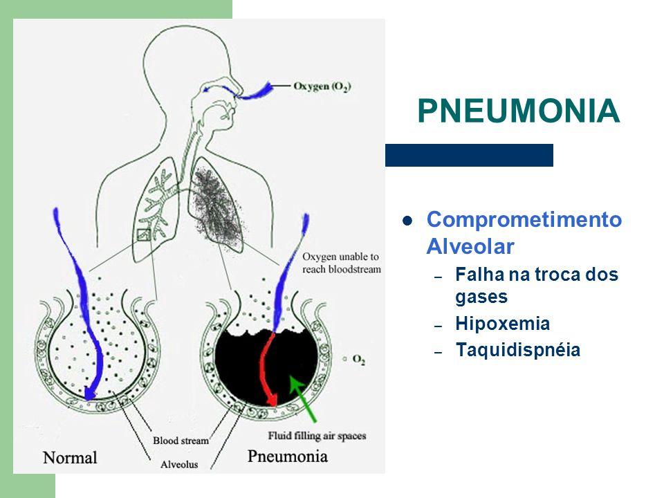 PNEUMONIA Comprometimento Alveolar – Falha na troca dos gases – Hipoxemia – Taquidispnéia