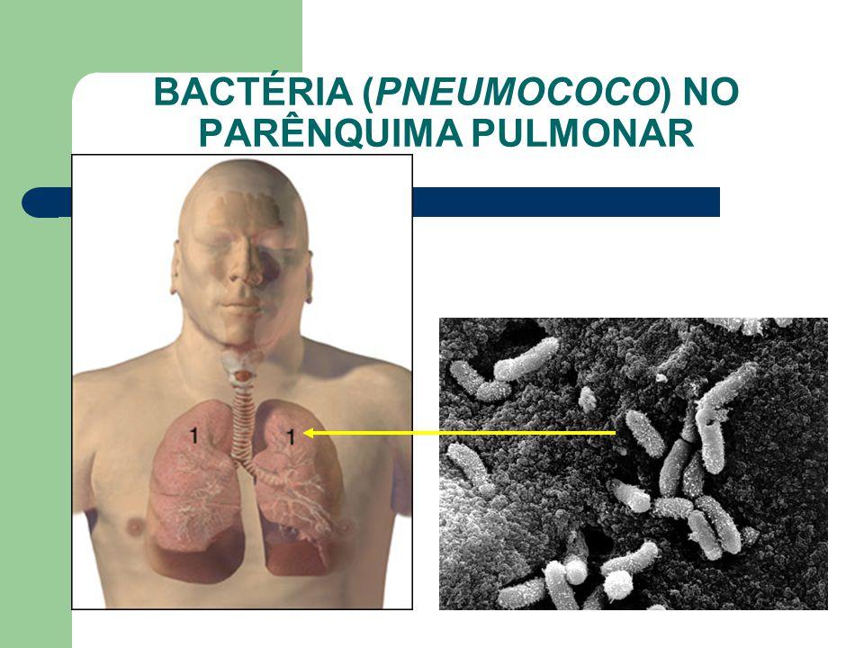 BACTÉRIA (PNEUMOCOCO) NO PARÊNQUIMA PULMONAR