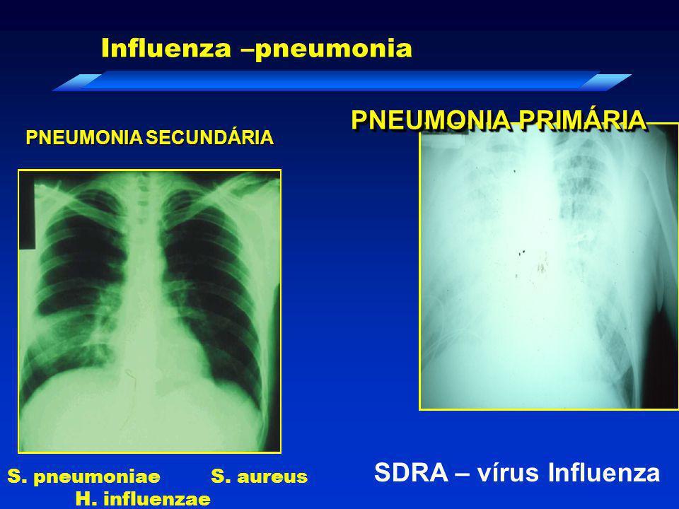 PNEUMONIA PRIMÁRIA SDRA – vírus Influenza PNEUMONIA SECUNDÁRIA Influenza –pneumonia S. pneumoniae S. aureus H. influenzae