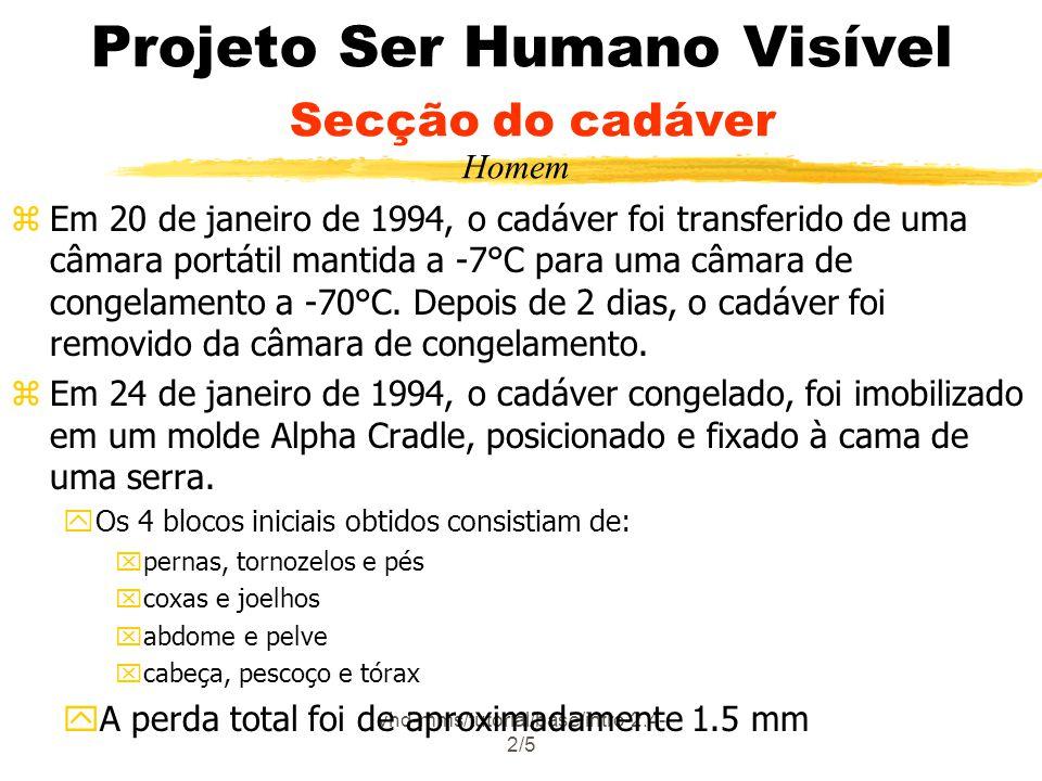 vhd-mms/tutorial/base/intro-2.4- 2/5 Projeto Ser Humano Visível Secção do cadáver zEm 20 de janeiro de 1994, o cadáver foi transferido de uma câmara portátil mantida a -7°C para uma câmara de congelamento a -70°C.