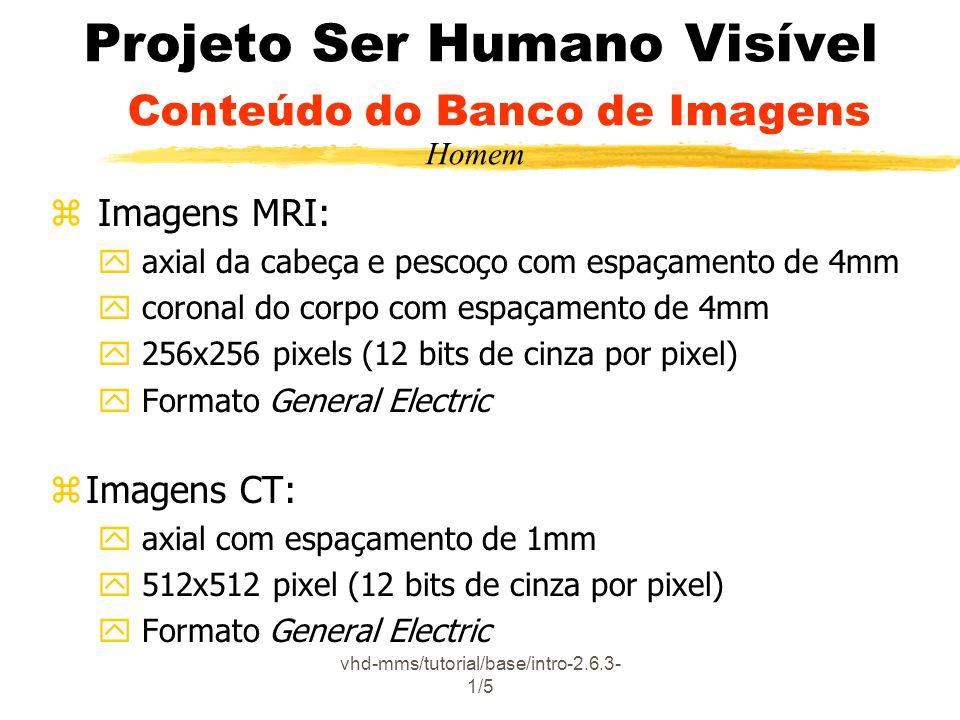 vhd-mms/tutorial/base/intro-2.6.3- 1/5 Projeto Ser Humano Visível Conteúdo do Banco de Imagens z Imagens MRI: y axial da cabeça e pescoço com espaçamento de 4mm y coronal do corpo com espaçamento de 4mm y 256x256 pixels (12 bits de cinza por pixel) y Formato General Electric zImagens CT: y axial com espaçamento de 1mm y 512x512 pixel (12 bits de cinza por pixel) y Formato General Electric Homem