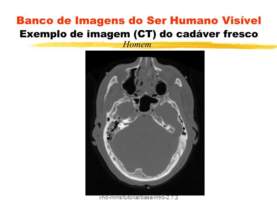 vhd-mms/tutorial/base/intro-2.7.2 Banco de Imagens do Ser Humano Visível Exemplo de imagem (CT) do cadáver fresco Homem