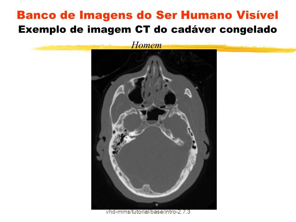 vhd-mms/tutorial/base/intro-2.7.3 Banco de Imagens do Ser Humano Visível Exemplo de imagem CT do cadáver congelado Homem