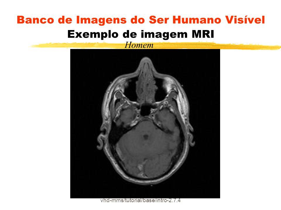 vhd-mms/tutorial/base/intro-2.7.4 Banco de Imagens do Ser Humano Visível Exemplo de imagem MRI Homem