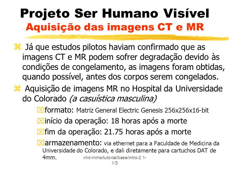 vhd-mms/tutorial/base/intro-2.6.3- 5/5 Projeto Ser Humano Visível Conteúdo do Banco de Dados Imagens MRI, CT e Raio-X zMRI: formato General Electric Genesis 256x256x16 bits zCT: formato General Electric Genesis espaçamento de 1mm zRaio-X: formato TIFF Mulher