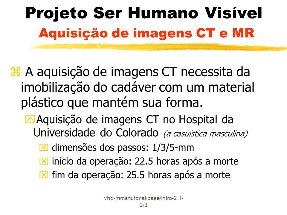 vhd-mms/tutorial/base/intro-2.1- 2/3 Projeto Ser Humano Visível Aquisição de imagens CT e MR z A aquisição de imagens CT necessita da imobilização do cadáver com um material plástico que mantém sua forma.
