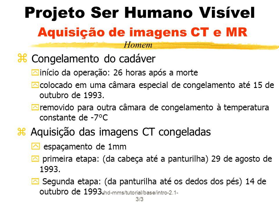 vhd-mms/tutorial/base/intro-2.1- 3/3 Projeto Ser Humano Visível Aquisição de imagens CT e MR z Congelamento do cadáver yinício da operação: 26 horas a