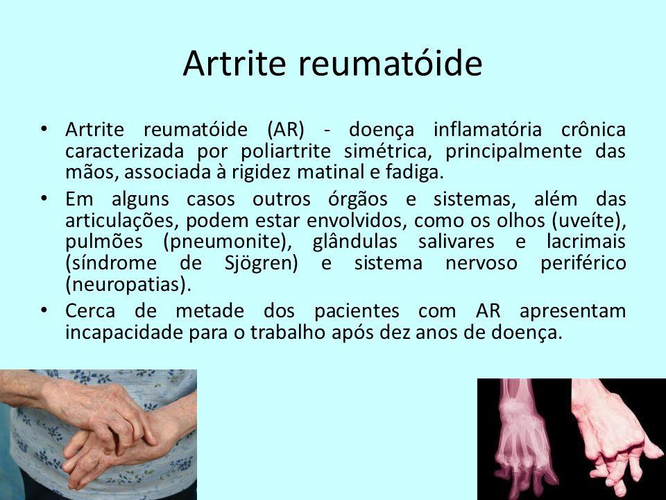Artrite reumatóide Artrite reumatóide (AR) - doença inflamatória crônica caracterizada por poliartrite simétrica, principalmente das mãos, associada à rigidez matinal e fadiga.