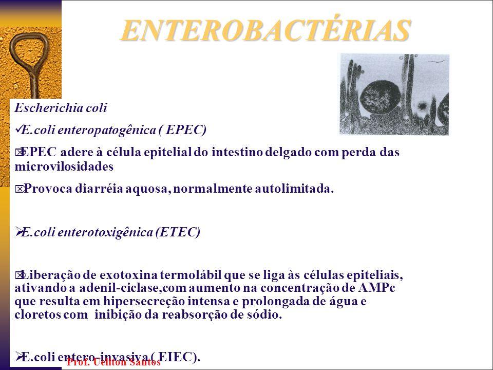 Diagnóstico da enterobactérias Sorotipagem : método de aglutinação em lâmina Cultura E.